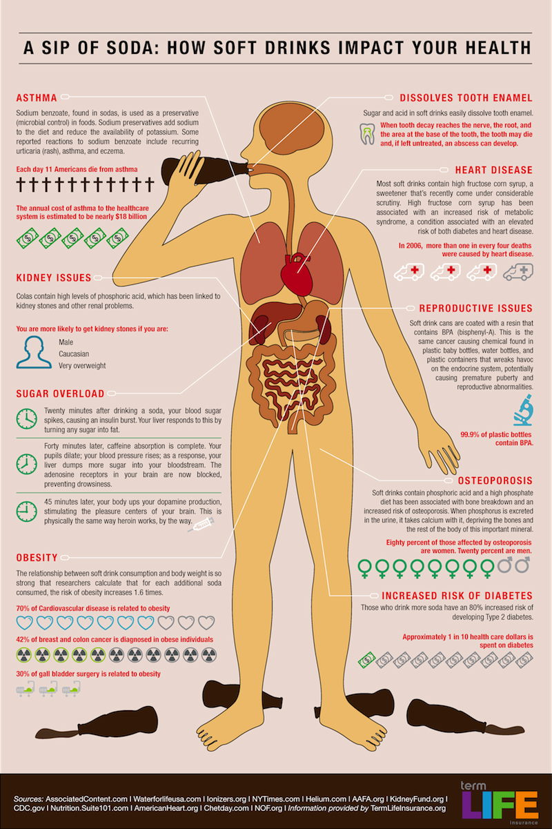 Harmful Effects of Soda Infograph